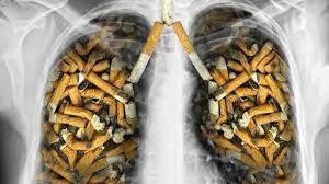 مضرات سیگار برای ریه